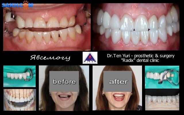 Полная реставрация зубов